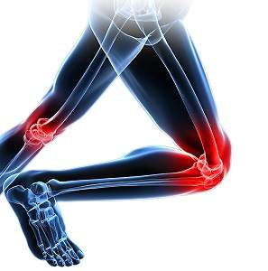Turmeric May Be Helpful for Bone Fracture Healing