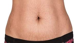 Experts Reveal Unpleasant Effects of Stretch Mark Laser Removal