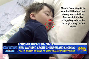 Is CPAP the Answer for Kids With Sleep Related Breathing Disorders
