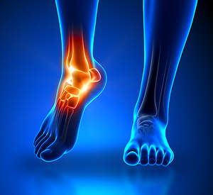 The Center Offers Treatment for Foot and Ankle Pain