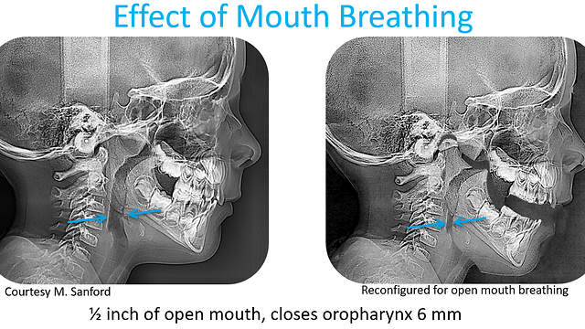 Mouth Breathing constricts Airway