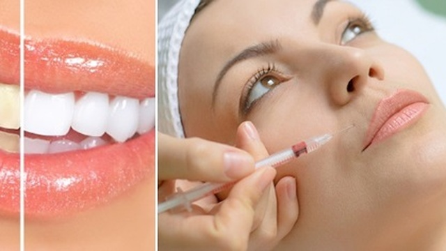 Botox or Teeth Whitening Services for Summer