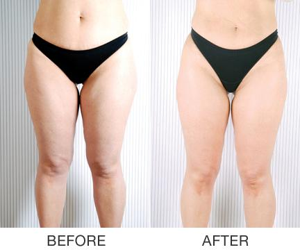 How To Get Rid Of Inner Thigh Fat Revealed