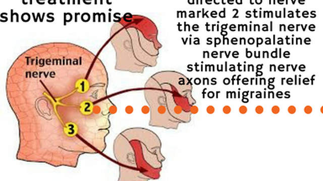 Photobiomodulation Therapy Migraines