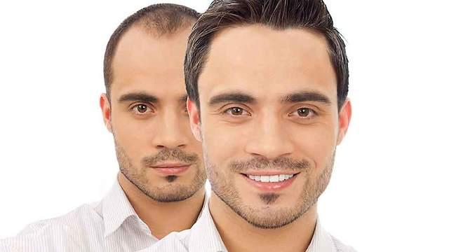 5 Reasons for Increase in Turkey Hair Transplant